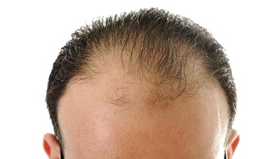 La máscara para los cabellos del aceite de calabazas